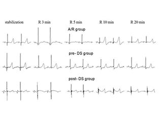 离体心脏缺血模型